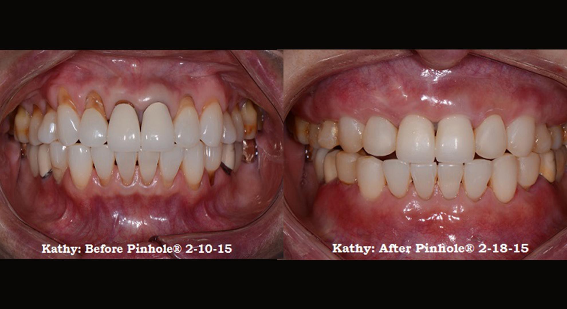 Pinhole Technique Gum Disease Treatment Forest Hills Ny