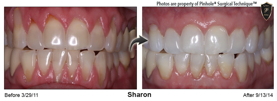 What Is The Pinhole Technique Correct Gum Recession